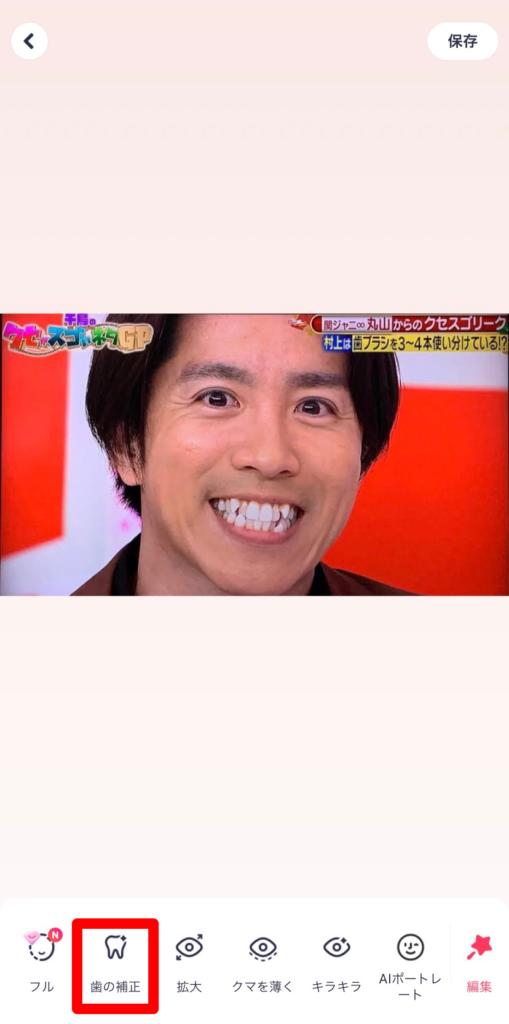 meitu 歯並び 修正